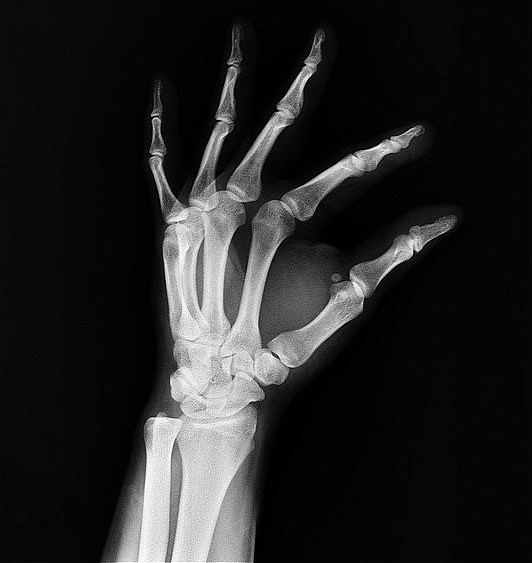 important facts about aging and bone loss