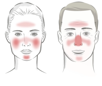 how to combat rosacea no more redness