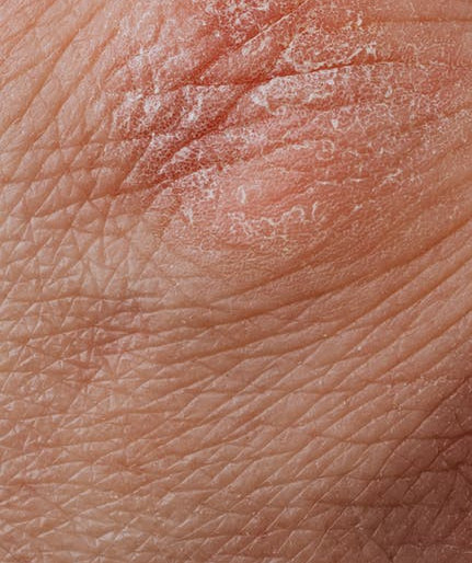 what are the best ingredients for dry skin